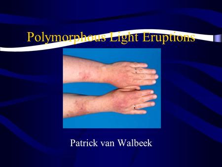 Polymorphous Light Eruptions Patrick van Walbeek.
