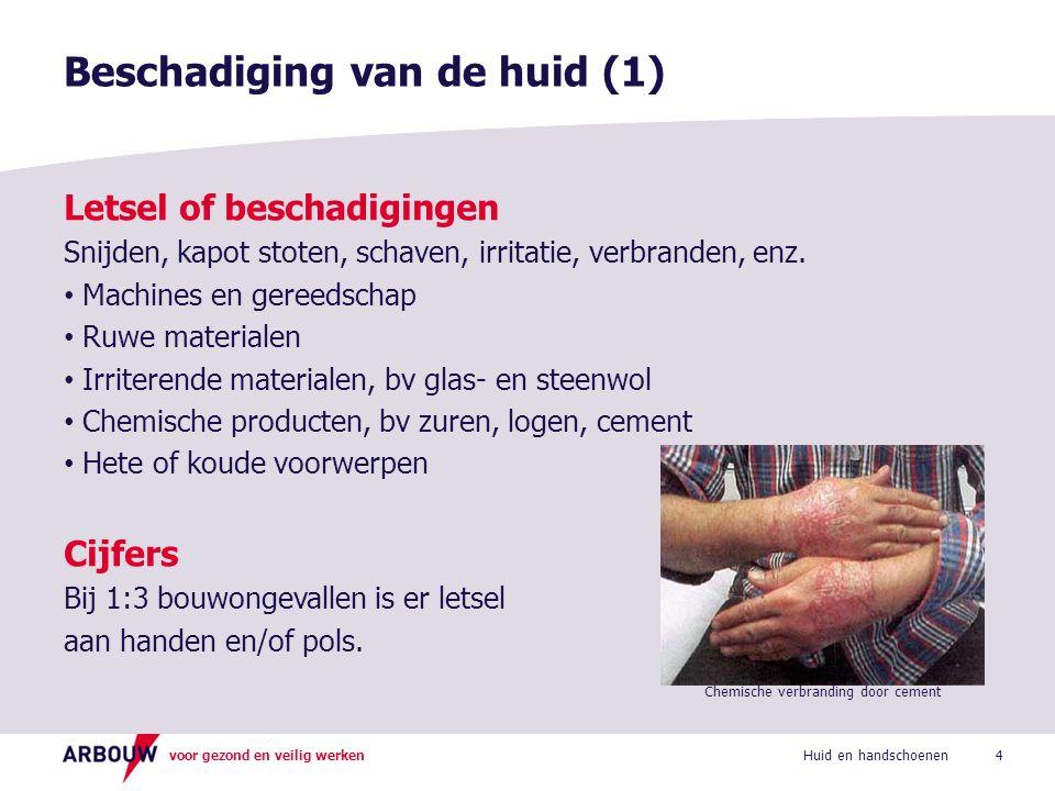 voor gezond en veilig werken Huidaandoeningen Roodheid, jeuk, uitslag, eczeem, allergie, enz.