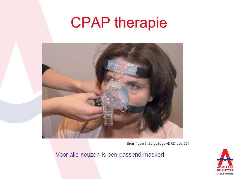 Overzicht van een ademstilstand en behandeling van CPAP tijdens de nacht.