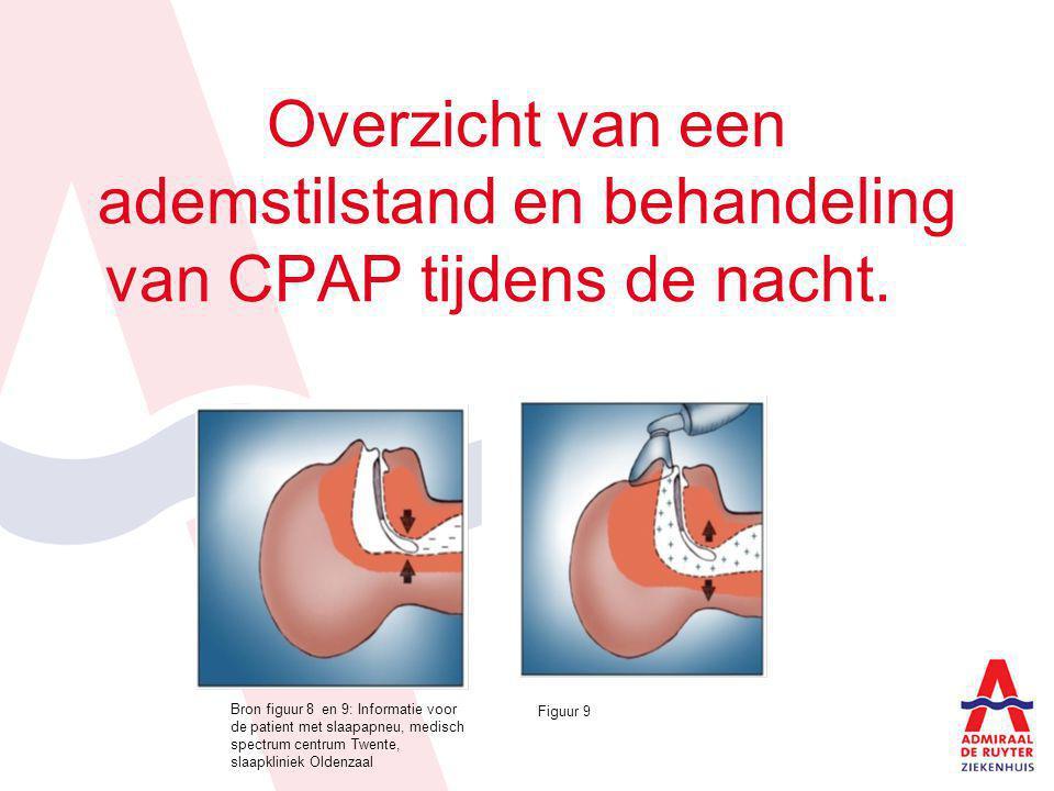 Onderdelen CPAP apparatuur Bron figuur 10 : Informatie voor de patient met slaapapneu, medisch spectrum centrum Twente, slaapkliniek Oldenzaal