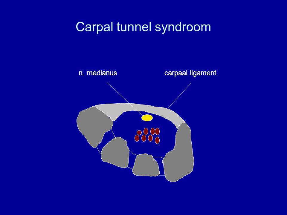 Carpal tunnel chirurgie T echnieken (1) Splitsen carpaal ligament
