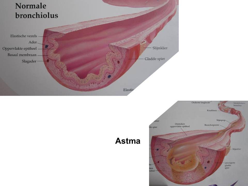 7Behandelmogelijkheden COPD Astma Irritatie van de luchtwegen Reactie op gassen en dampen; rook, parfum Reactie op allergische prikkels; pollen, stof, honden Reactie door inspanning Weersinvloeden (koude en /of mist)