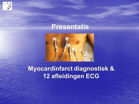 Myocardinfarct diagnostiek & 12 afleidingen ECG