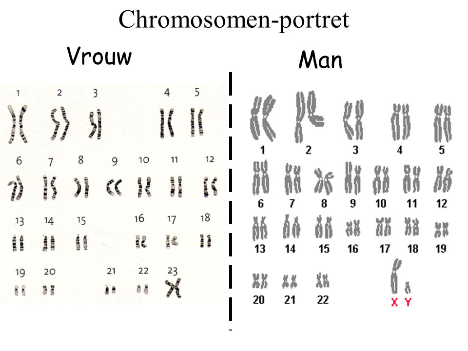 Chromosomen-portret Vrouw Man