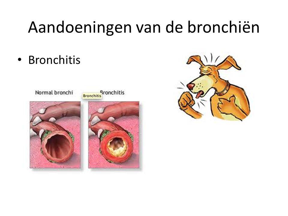 Aandoeningen van de bronchiën
