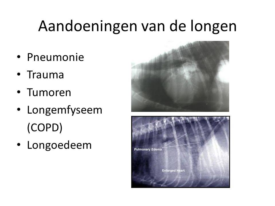 Aandoeningen van de longen