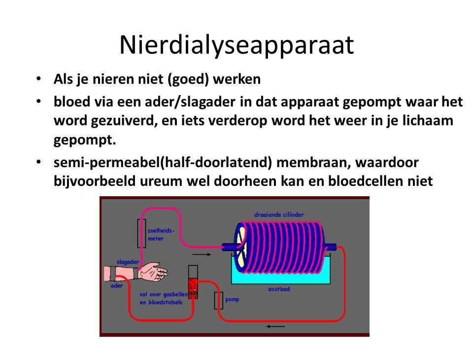 Nierdialyseapparaat Als je nieren niet (goed) werken