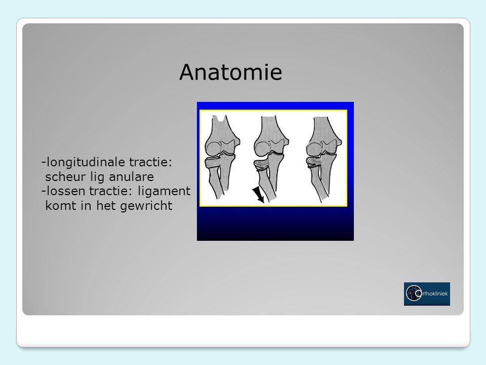 Anatomie -longitudinale tractie: scheur lig anulare