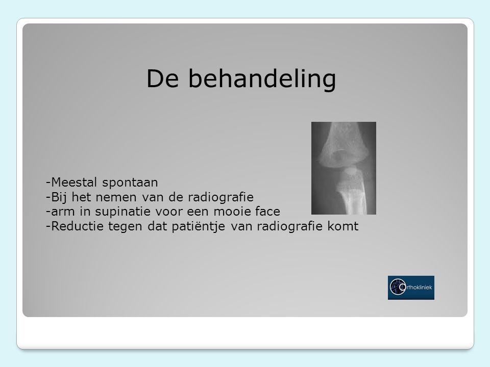 De behandeling -Meestal spontaan -Bij het nemen van de radiografie