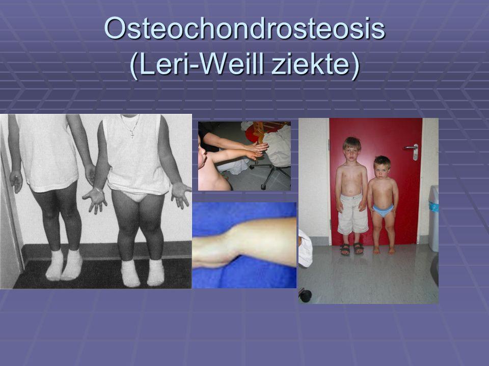 Osteochondrosteosis (Leri-Weill ziekte)