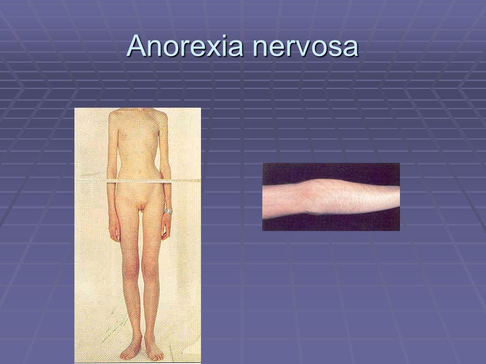 Anorexia nervosa Koude extremiteiten laag harttitme verschil constiyitionele magerte met late puberteit.