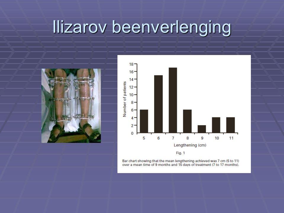 Ilizarov beenverlenging
