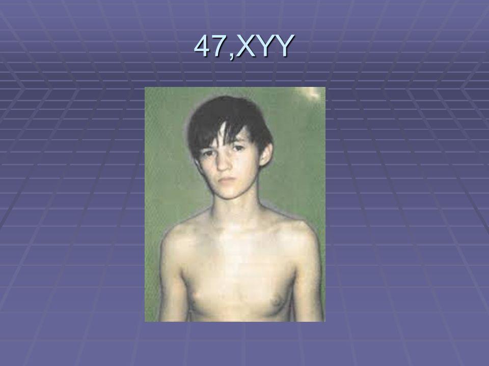47,XYY 1/1000 Een versnelde groeispurt in hun kinderjaren, en daardoor een grotere lichaamslengte. Soms acne erg.