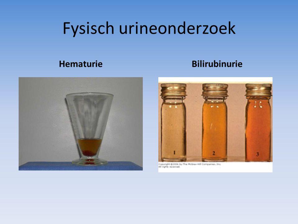 Fysisch urineonderzoek