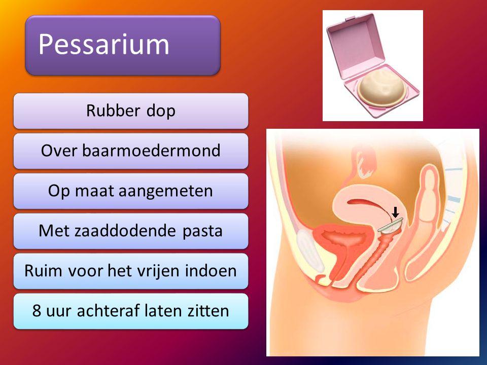 Pessarium Rubber dop Over baarmoedermond Op maat aangemeten