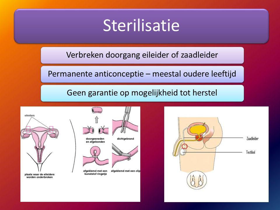 Sterilisatie Verbreken doorgang eileider of zaadleider