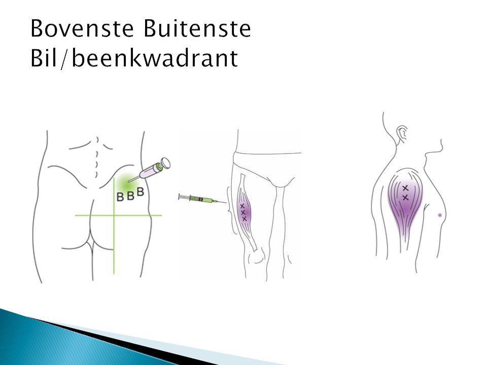 Bovenste Buitenste Bil/beenkwadrant