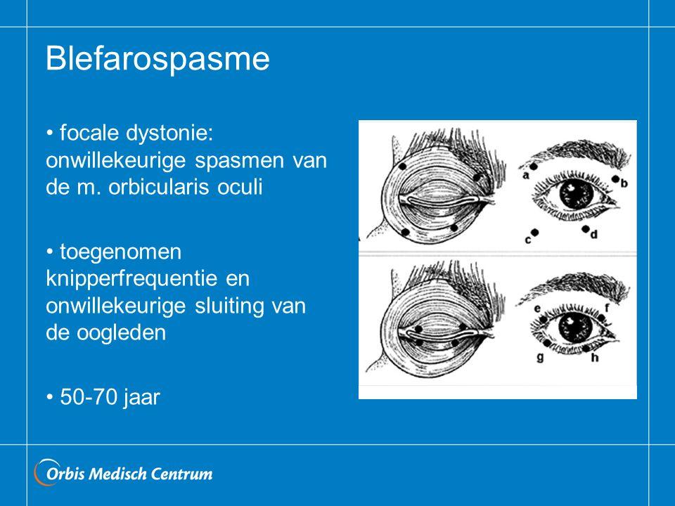 Blefarospasme focale dystonie: onwillekeurige spasmen van de m. orbicularis oculi.