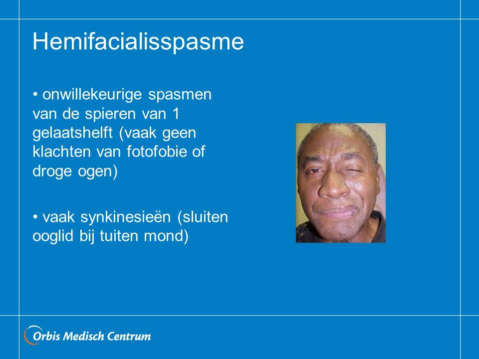 Hemifacialisspasme onwillekeurige spasmen van de spieren van 1 gelaatshelft (vaak geen klachten van fotofobie of droge ogen)