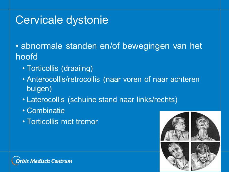 Cervicale dystonie abnormale standen en/of bewegingen van het hoofd