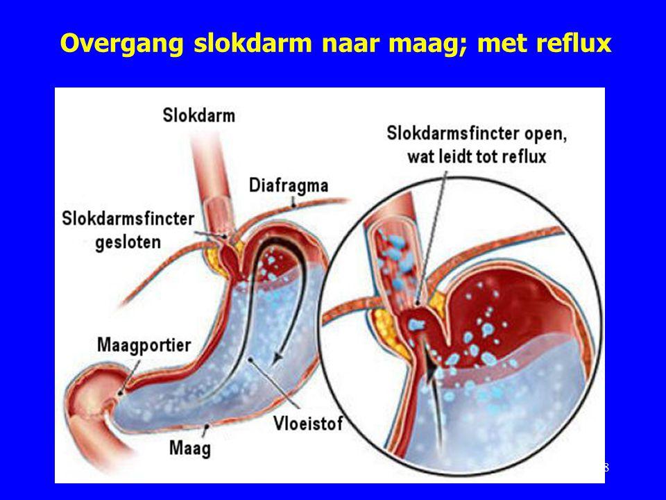 Overgang slokdarm naar maag; met reflux