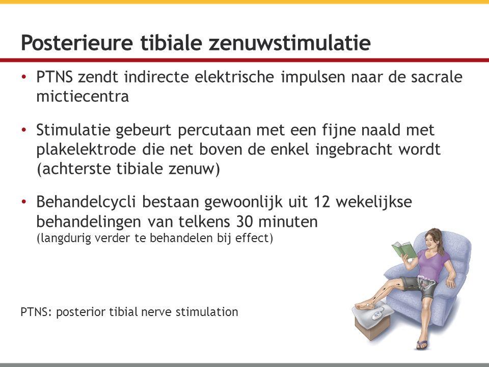 Posterieure tibiale zenuwstimulatie