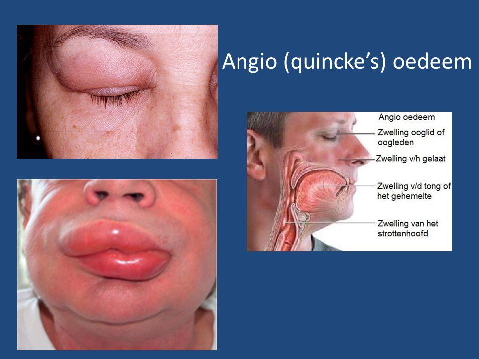 Angio (quincke's) oedeem