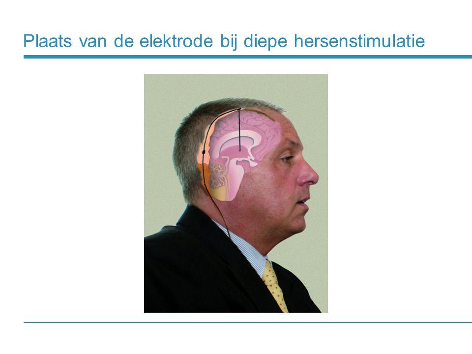 Plaats van de elektrode bij diepe hersenstimulatie