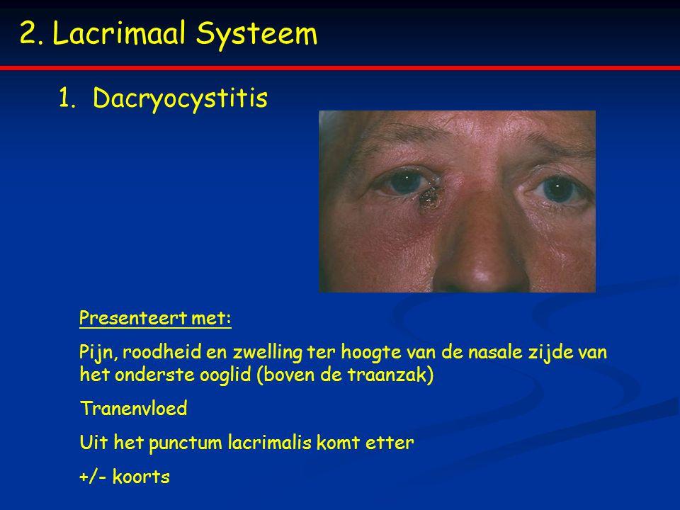 Lacrimaal Systeem Dacryocystitis Presenteert met: