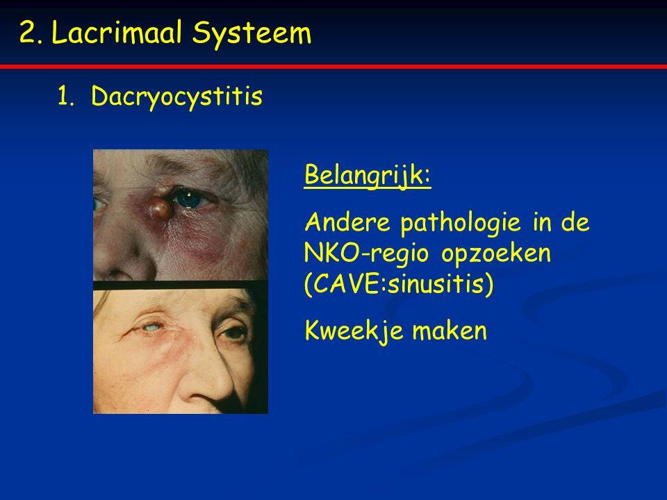 Lacrimaal Systeem Dacryocystitis Belangrijk: