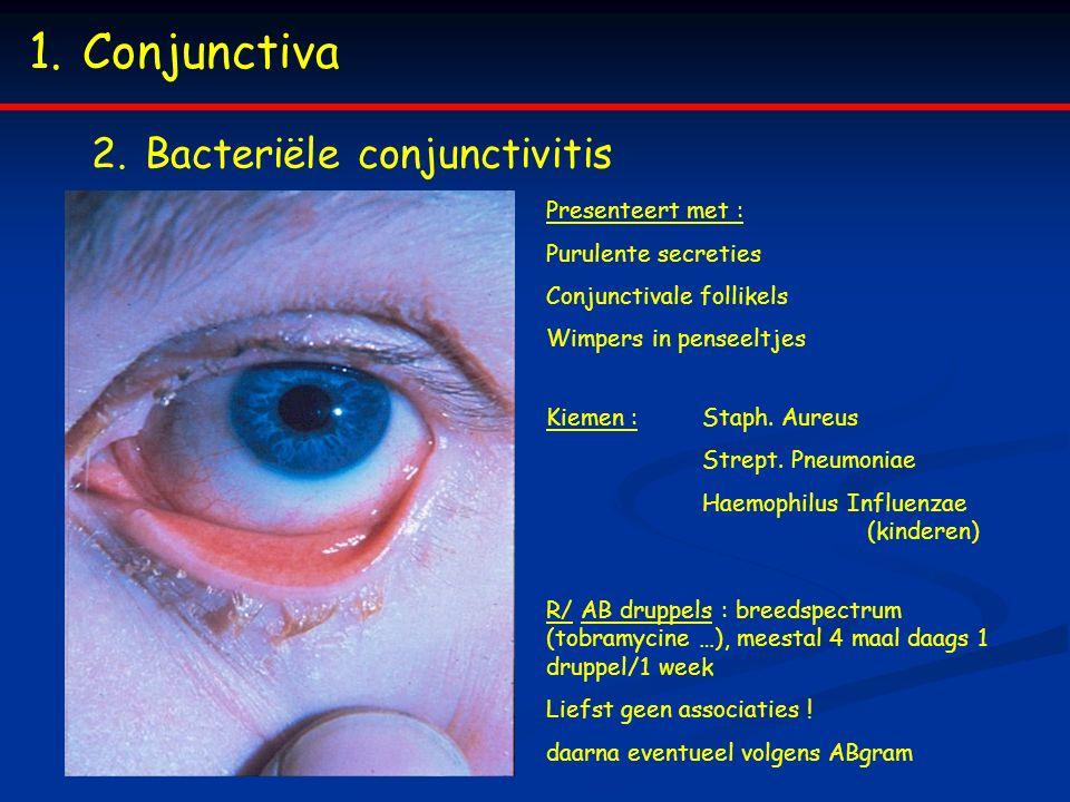 Conjunctiva Bacteriële conjunctivitis Presenteert met :