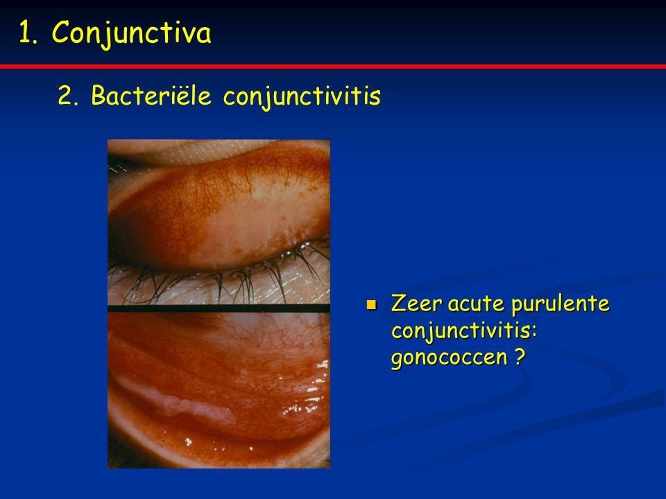 Conjunctiva Bacteriële conjunctivitis