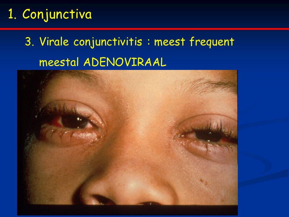 Conjunctiva Virale conjunctivitis : meest frequent meestal ADENOVIRAAL