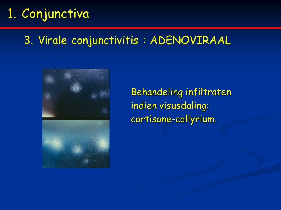 Conjunctiva Virale conjunctivitis : ADENOVIRAAL