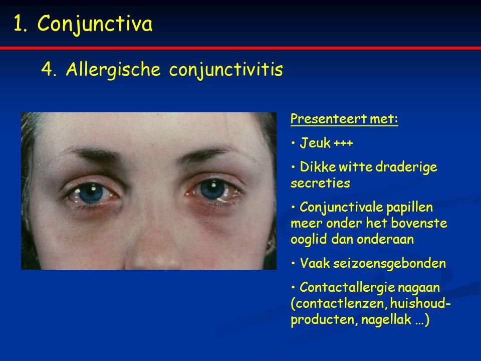 Conjunctiva Allergische conjunctivitis Presenteert met: Jeuk +++