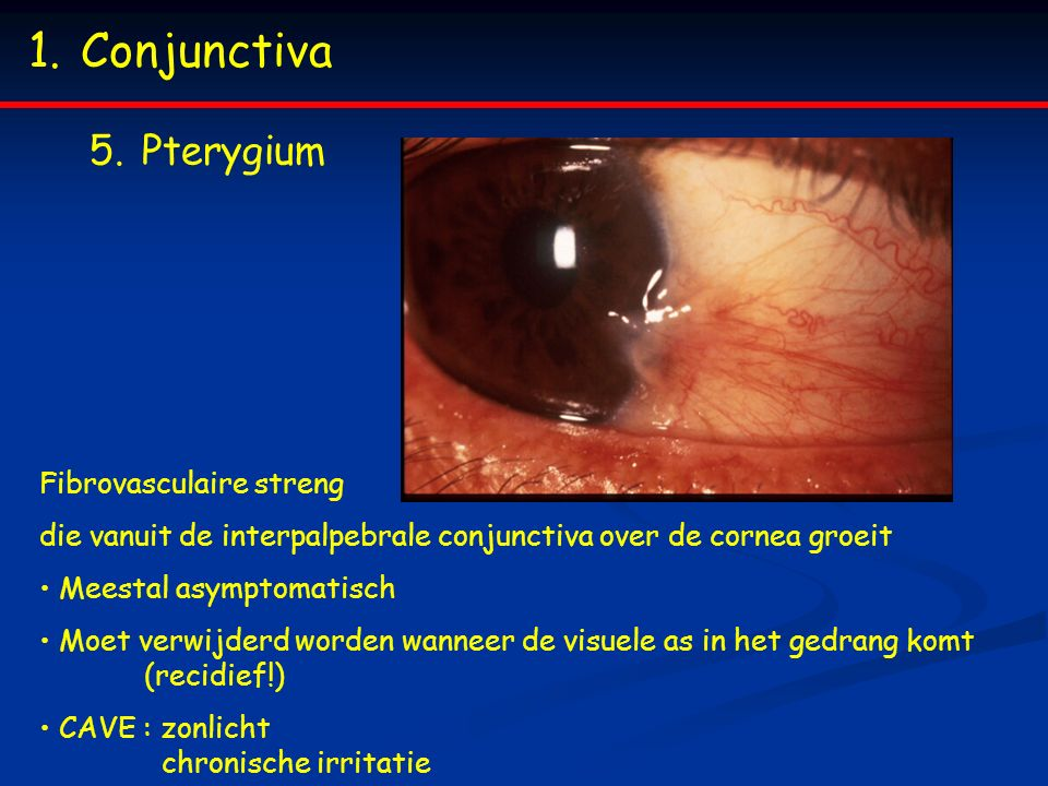 Conjunctiva Pterygium Fibrovasculaire streng