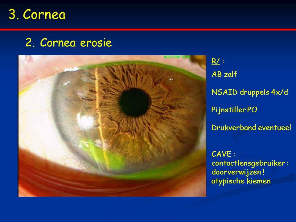 Cornea Cornea erosie R/ :