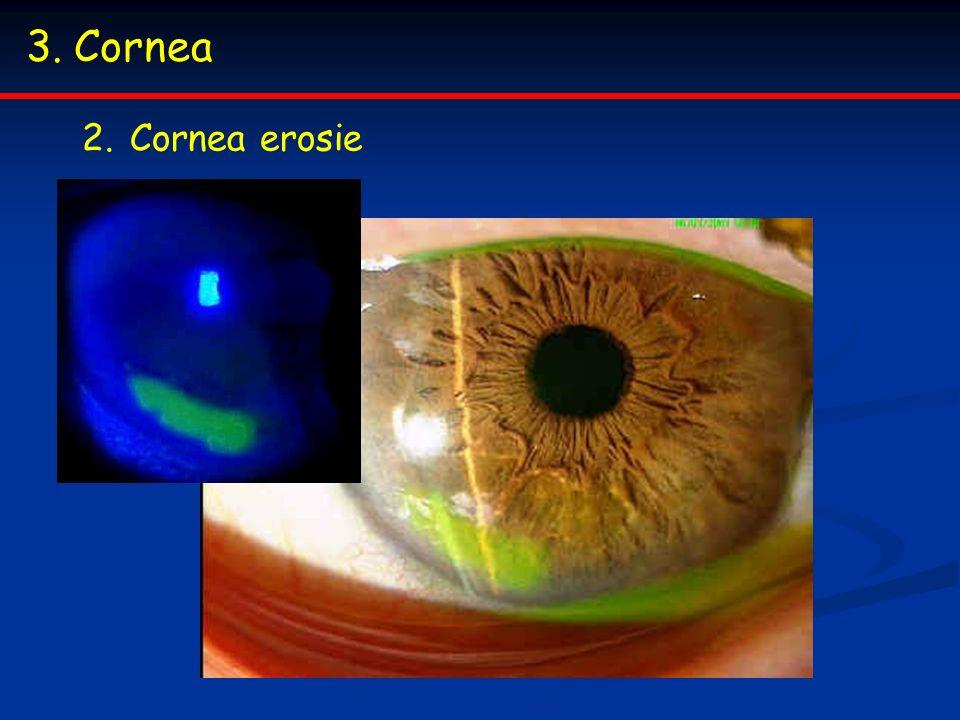 Cornea Cornea erosie