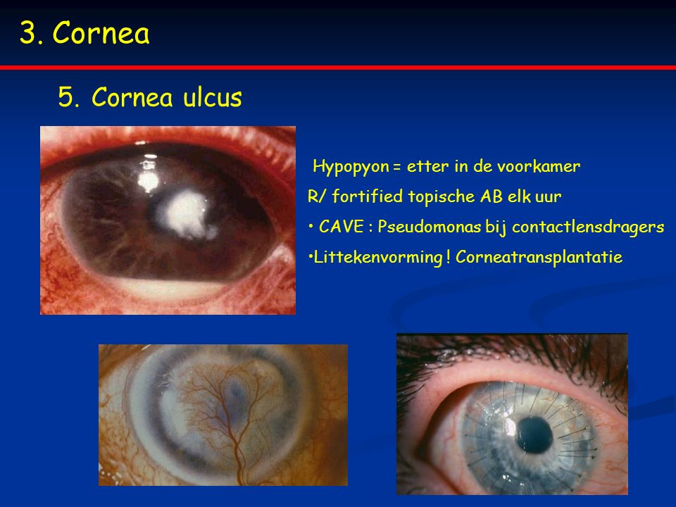 Cornea Cornea ulcus Hypopyon = etter in de voorkamer
