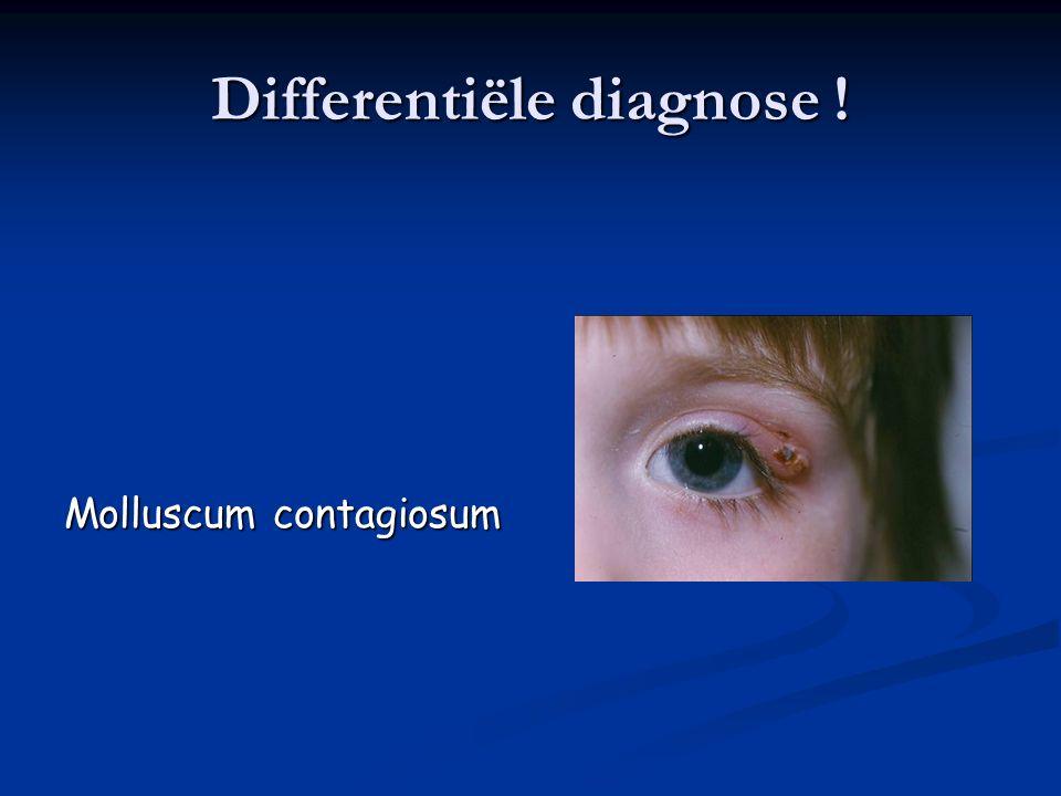 Differentiële diagnose !