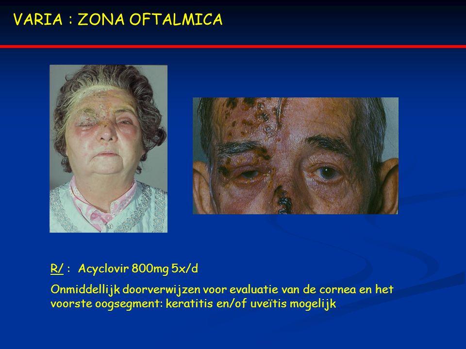 VARIA : ZONA OFTALMICA R/ : Acyclovir 800mg 5x/d