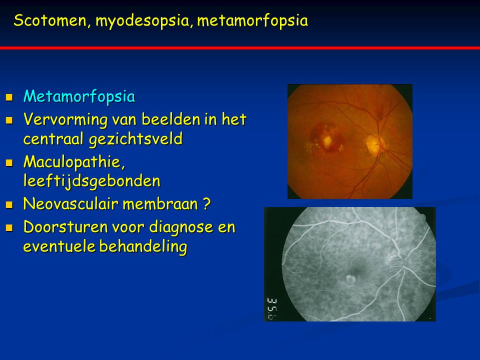 Scotomen, myodesopsia, metamorfopsia