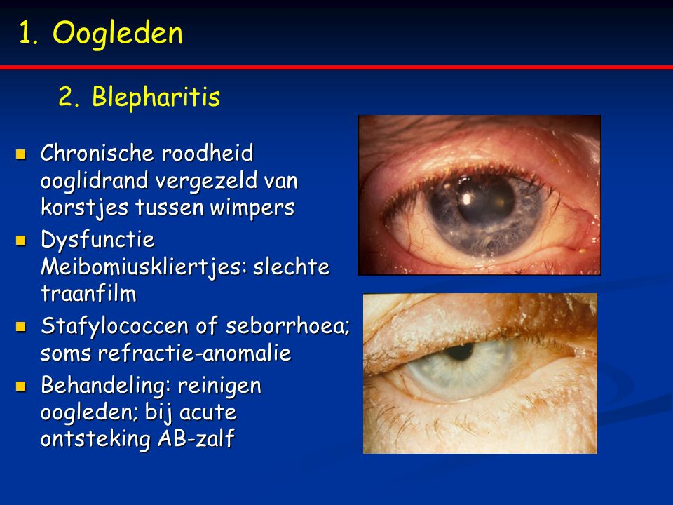 Oogleden Blepharitis. Chronische roodheid ooglidrand vergezeld van korstjes tussen wimpers. Dysfunctie Meibomiuskliertjes: slechte traanfilm.