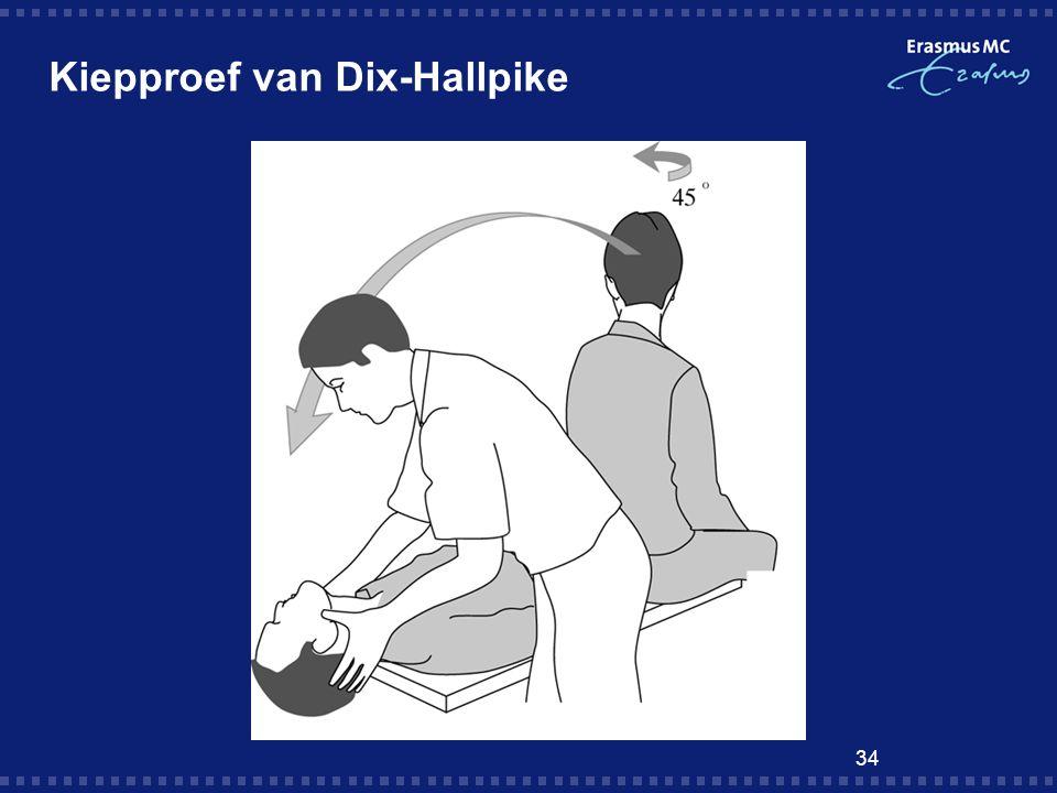 Kiepproef van Dix-Hallpike