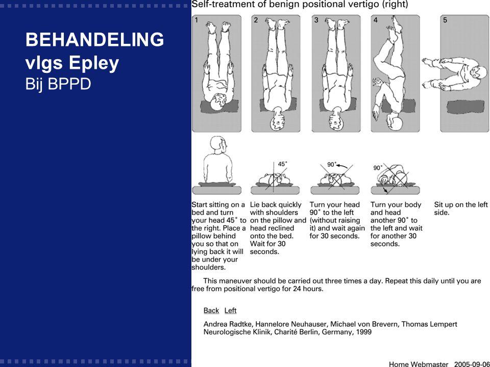 BEHANDELING vlgs Epley Bij BPPD