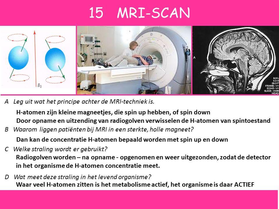 15 MRI-SCAN A Leg uit wat het principe achter de MRI-techniek is.