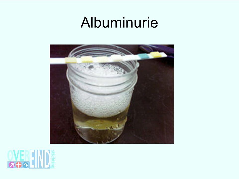 Albuminurie Dit is geen biertje maar nefrotische proteinurie
