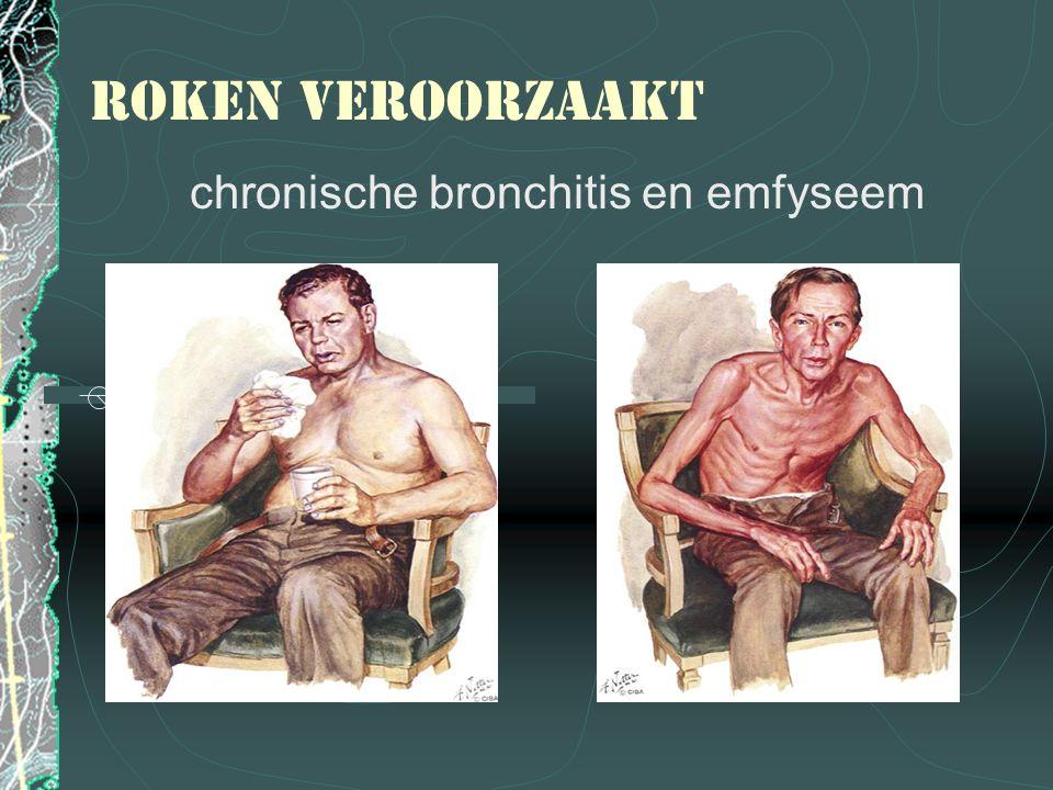 chronische bronchitis en emfyseem