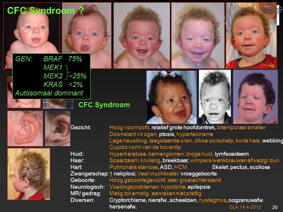 CFC Syndroom GEN: BRAF 75% MEK1 MEK2 ~25% KRAS <2%