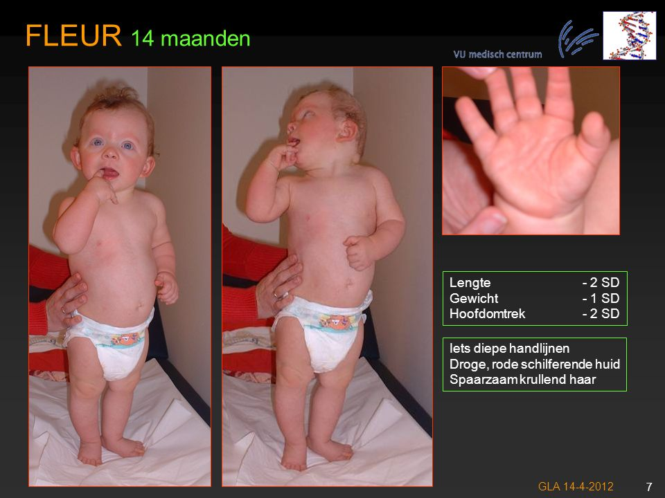 FLEUR 14 maanden Lengte - 2 SD Gewicht - 1 SD Hoofdomtrek - 2 SD